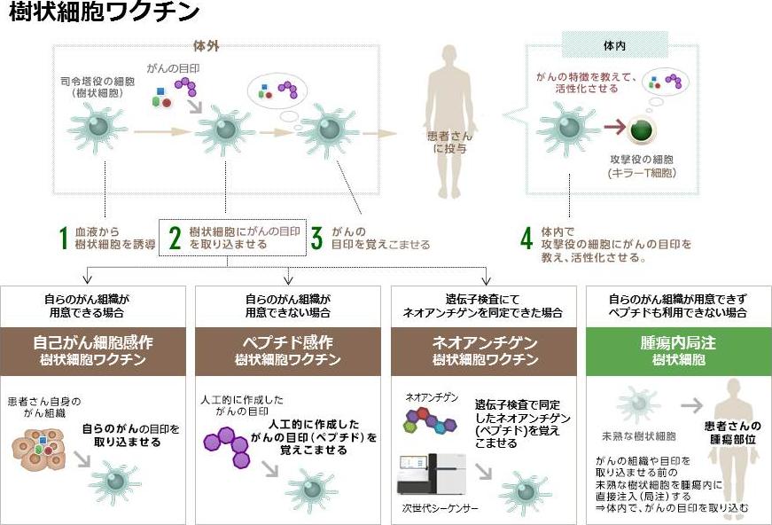 樹状細胞ワクチン