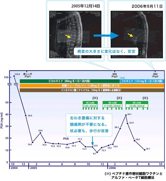 前立腺がんに対する免疫療法case15