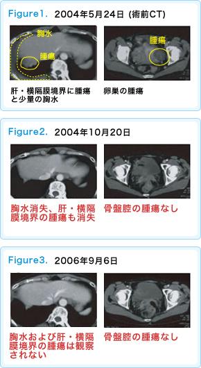卵巣がんに対する免疫療法case18
