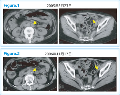 子宮がんに対する免疫療法case20