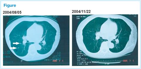 直腸がんに対する免疫療法case22