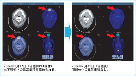悪性リンパ腫に対する免疫療法case23