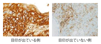 肺がんに対する免疫療法case_16_1