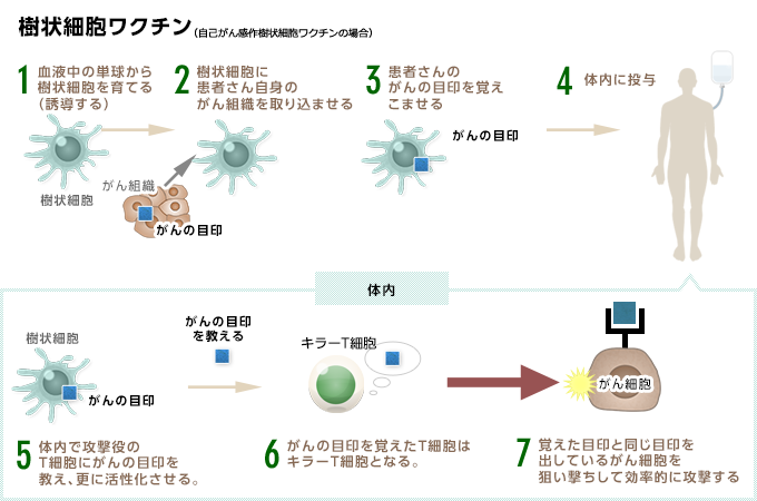 樹状細胞ワクチン療法とは