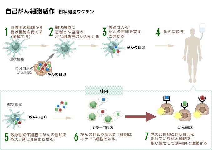 自己がん細胞感作樹状細胞ワクチン療法
