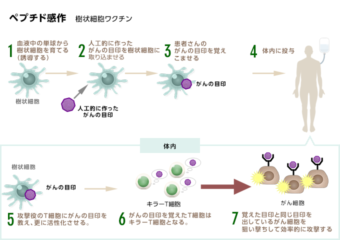 ペプチド感作樹状細胞ワクチン療法