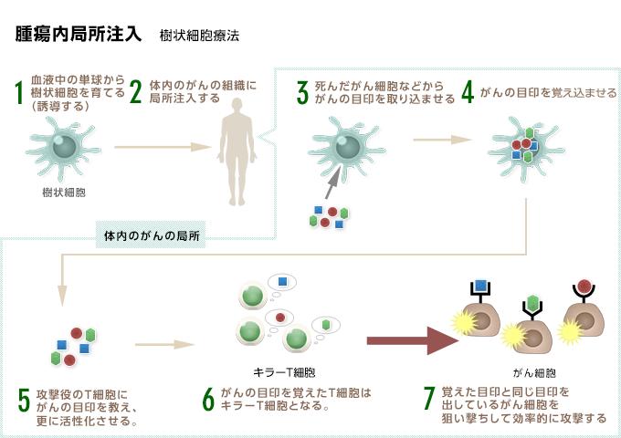 腫瘍内局注樹状細胞ワクチン療法