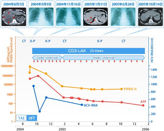 肝臓がんに対する免疫療法liver_cancer2
