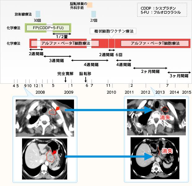 食道がんに対する免疫療法case026